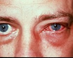 allergic conjunctivitis 2