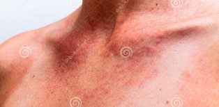 http://www.dreamstime.com/royalty-free-stock-photo-sun-allergy-image28453295
